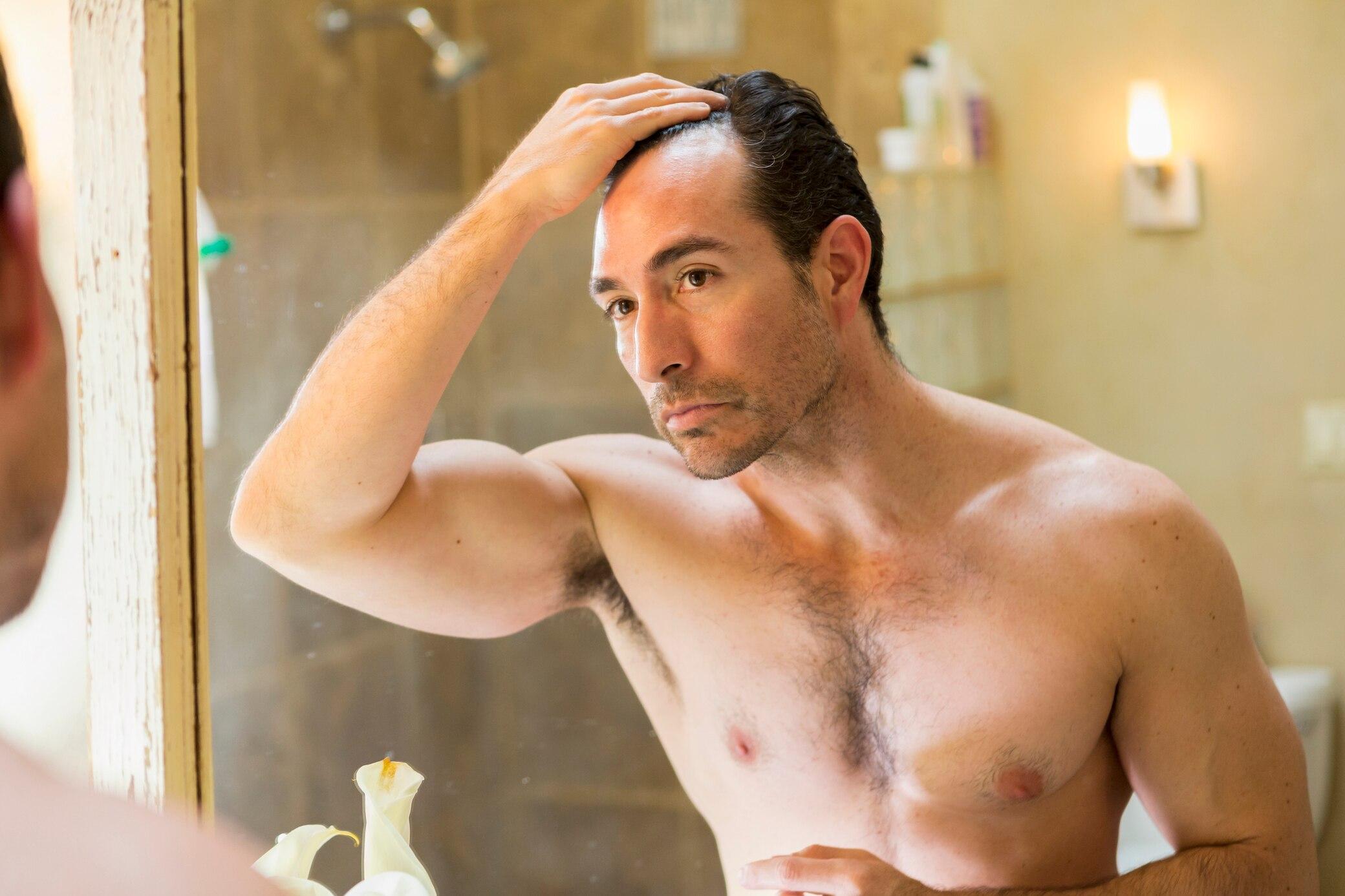 Was tun, wenn lichtes Haar zur Glatze wird? - STYLEBOOK