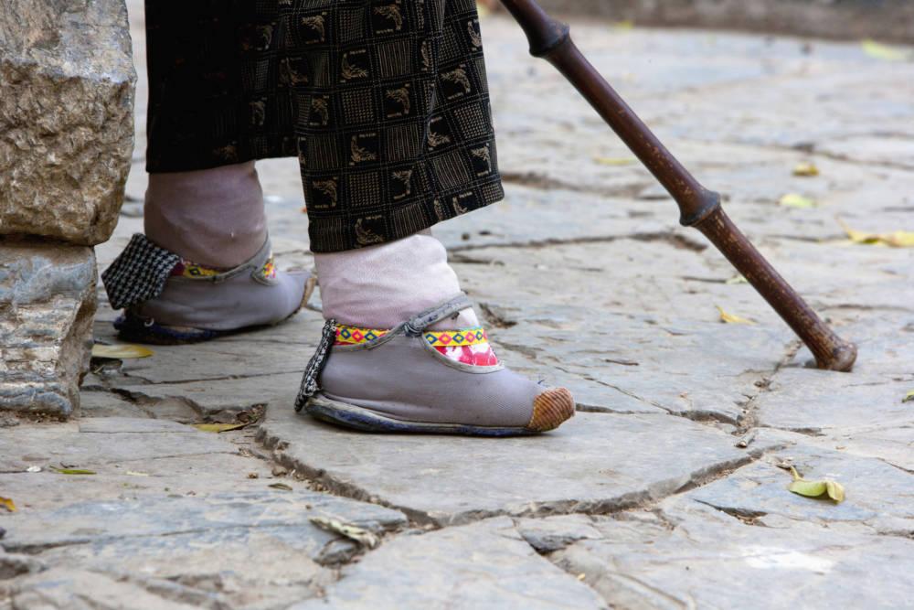 Füßebinden in China