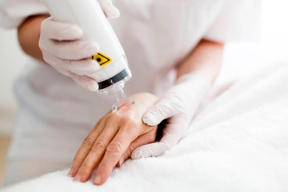 Laserbehandlung zur Narbenentfernung