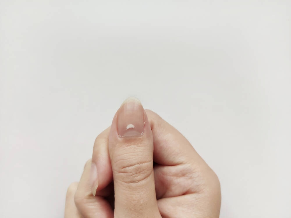 Weißer Fleck auf Fingernagel