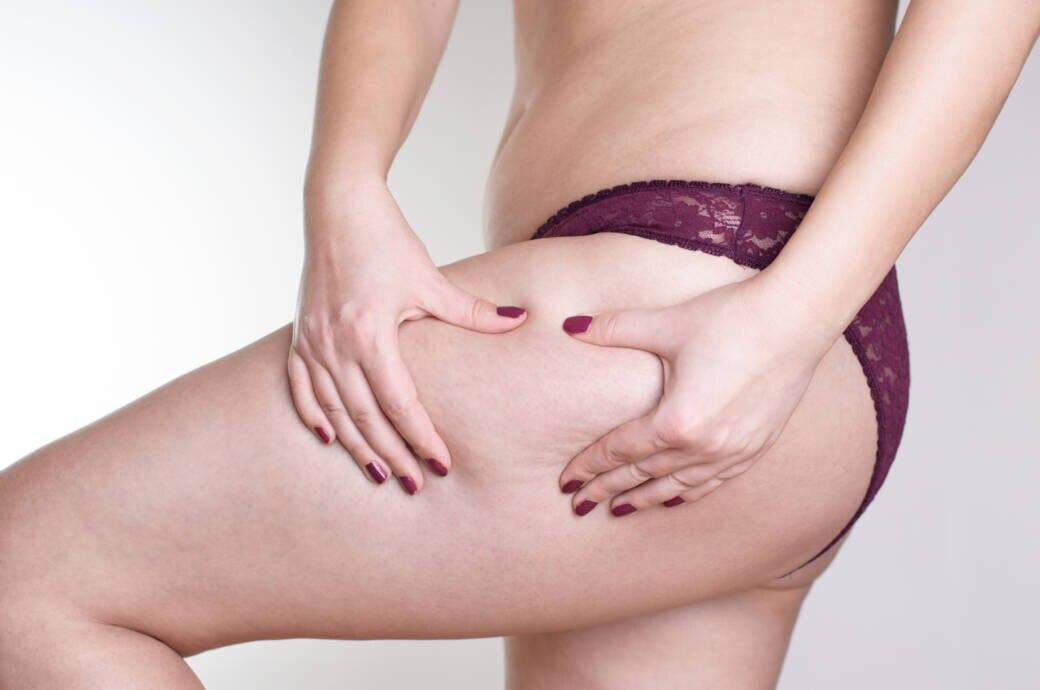 Frau mit Cellulite am Bein
