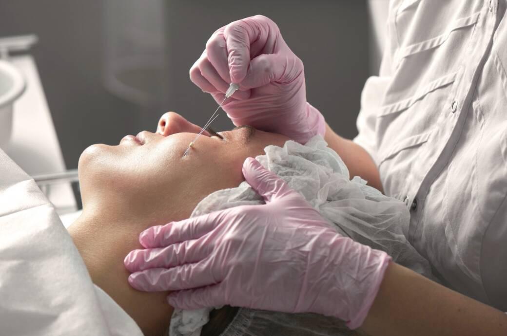 Fadenlifting – warum man das Beauty-Treatment kritisch sehen sollte
